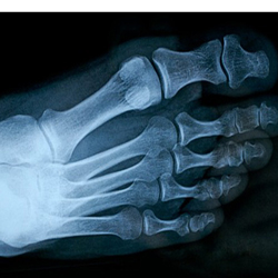 X-ray image of mature man's feet