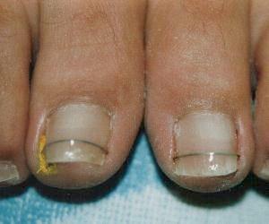 Nagelbeugel en nagelregulatie techniek