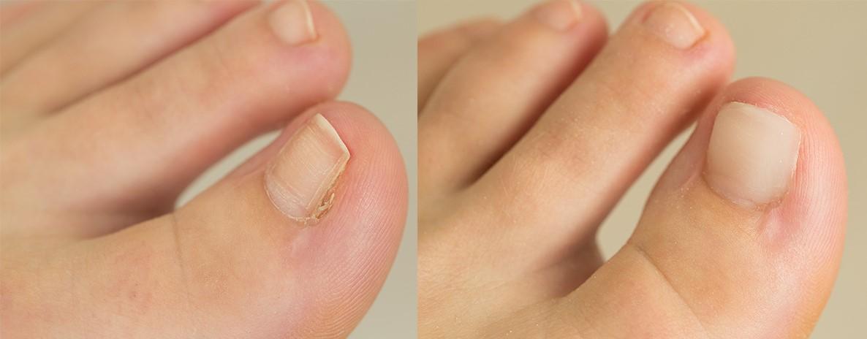 nagelprothese techniek