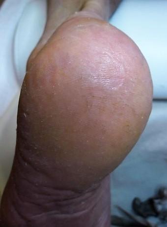 Hiel na kloven behandeling